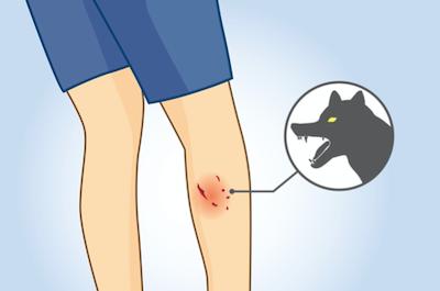 If An Animal Bites You